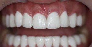 Что лучше поставить на зубы: виниры или люминиры