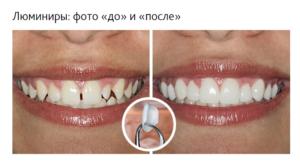 Поставить на зубы: виниры или люминиры
