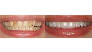 Что лучше поставить на зубы – виниры или люминиры