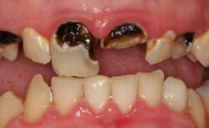 Как лечится эрозия зубов в домашних условиях