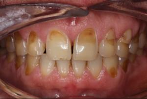 Как лечится эрозия зубов