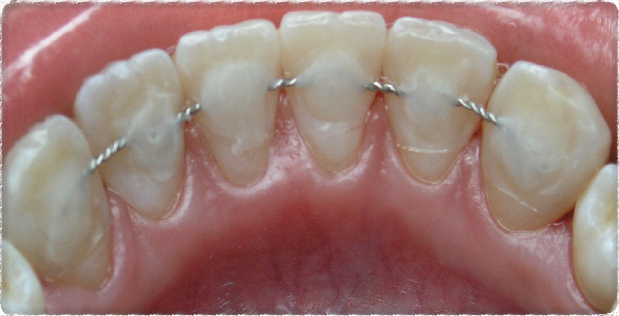 Спб установка на зубы шинирование цена