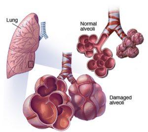 Симптомы и лечение экзогенного аллергического альвеолита