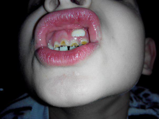 Нужно ли переживать, если молочный зуб выпал, а новый не растет?