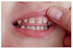 Лечение перелома зуба в домашних условиях