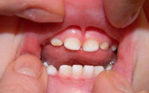 желтый налет на зубах у детей
