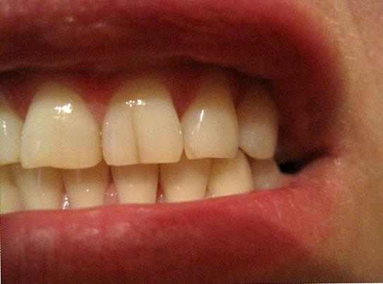 Треснул коренной зуб вдоль что делать