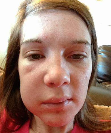 сколько дней держится сыпь при аллергии
